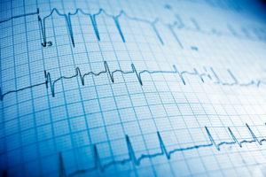 atrial fibrillation life insurance